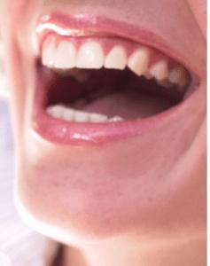 Happy healthy smile