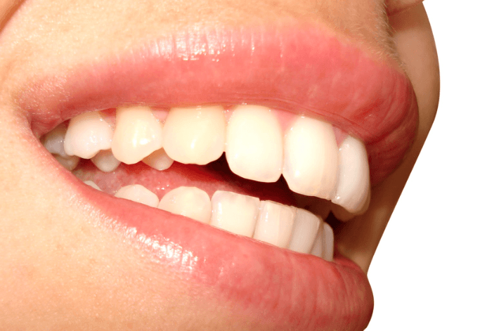 Oral Probiotic Health and Oral Solutions