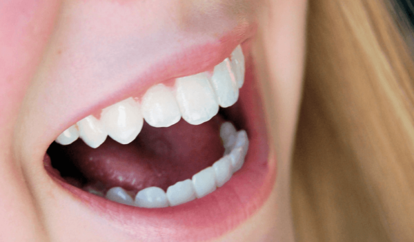 natural-dry-mouth-remedy-your-frustration-solved