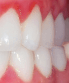 Gum Disease and Treatment-You Have It-Now What?