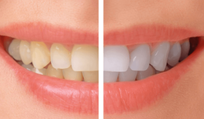 the-best-teeth-whitening-products-dental-hygienists-top-3