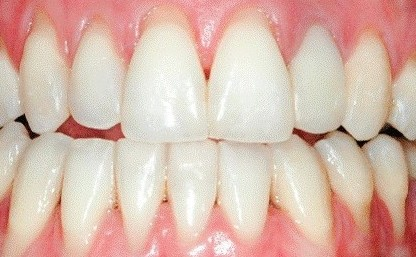 gum-disease-and-treatment-you-have-it-now-what