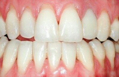 Abfractions and receding gums