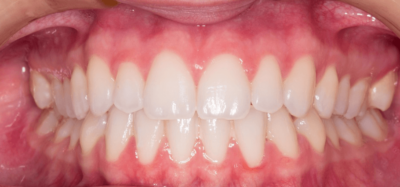 Best Whitening Toothpaste for Sensitive Teeth