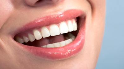 Can You Use Hydrogen Peroxide to Whiten Teeth?-Yes and No